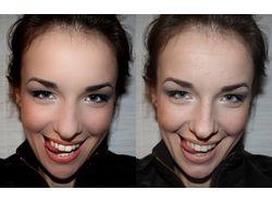 Обработка кожи лица2