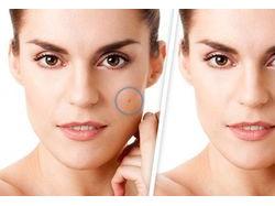 Процедура удаления новообразований лазером на лице