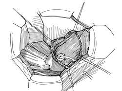Медицинская иллюстрация, вектор