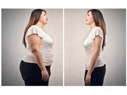 Убрать кожу с живота после похудения