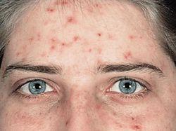 Нездоровая кожа