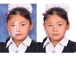 коррекция дефектов на лице