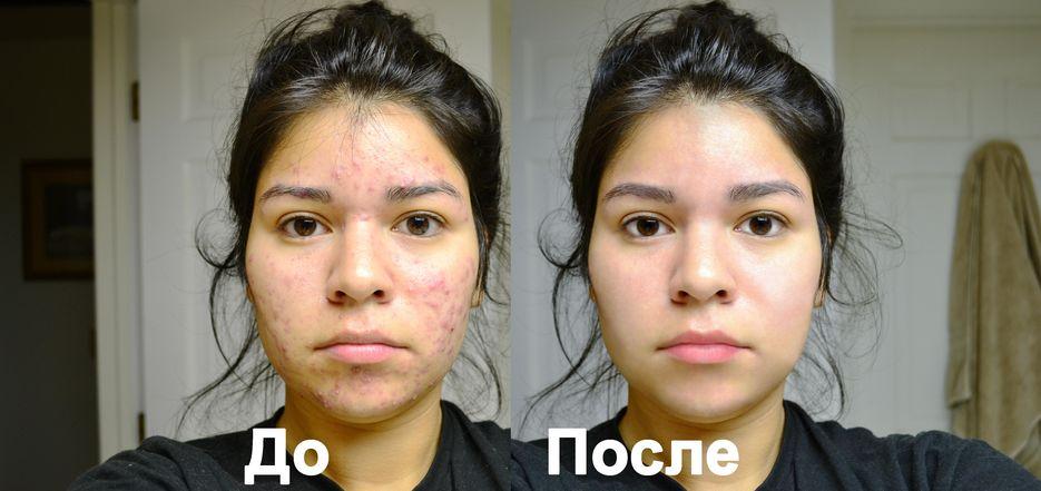 ретушь проблемной кожи лица