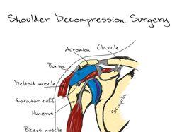 Shoulder Decompression Surgery