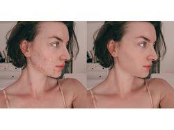 Выравнивание тона лица, удаление прыщей