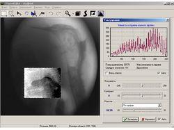 Система обработки изображений для РТС