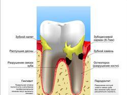 Плохой зуб(вектор)
