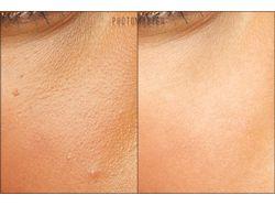 Глубокая очистка кожи